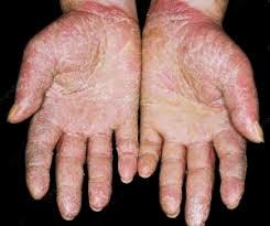 Dermolios – hudproblem - sverige – Pris – köpa