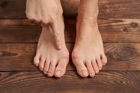 Buniduo Gel Comfort – på platta fötter - resultat – köpa – bluff