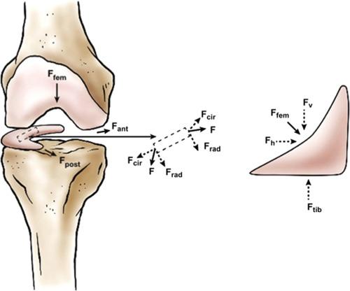 Knee Force - någon som provat - omdöme - test - resultat